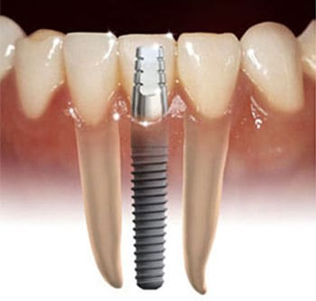 samaritan dental implant in tijuana