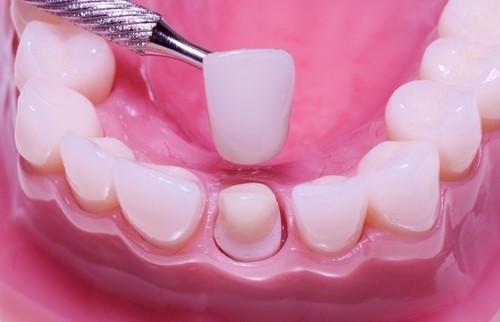 Dental-Crown1