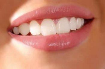 Teeth Whitening Coral Gables e