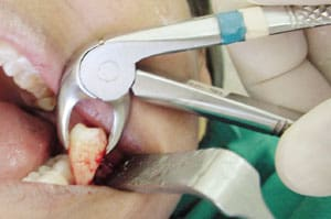 extraction of tooth
