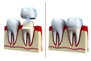 medref dental crown