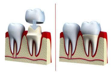 medref dental crown