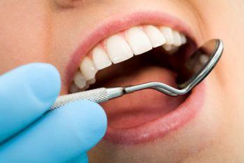 teeth cleaning e