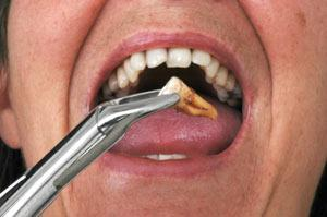 tooth-extraction